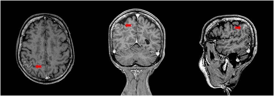 AVC ischémique du lobule pariétal inférieur droit