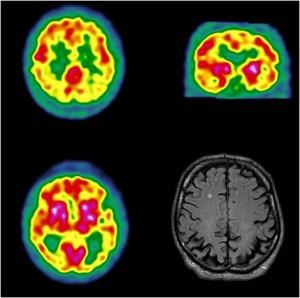Hypofixation occipitale bilatérale (scintigraphie HMPAO)et atrophie corticale postérieure à l'IRM
