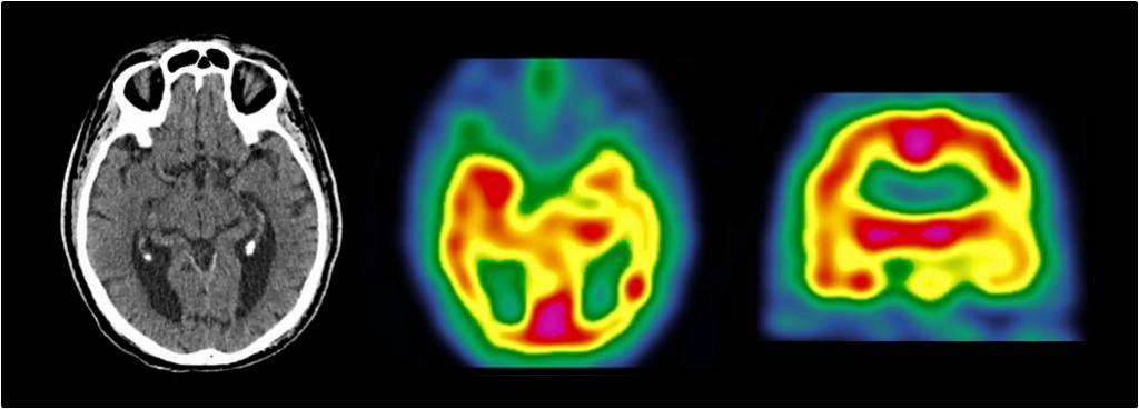 Scintigraphie HMPAO : hypofixation hétérogène des régions temporo-occipitales