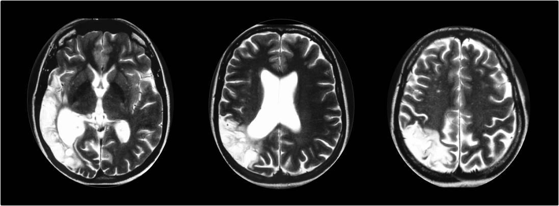 IRM : séquelle ischémique temporo-pariétale droite